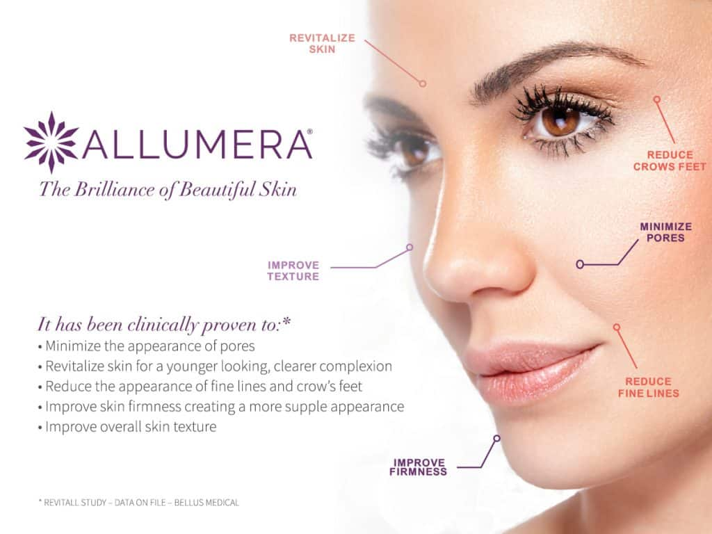Allumera Benefits